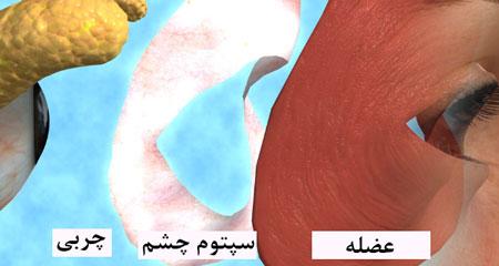 عمل-جراحی-پلک