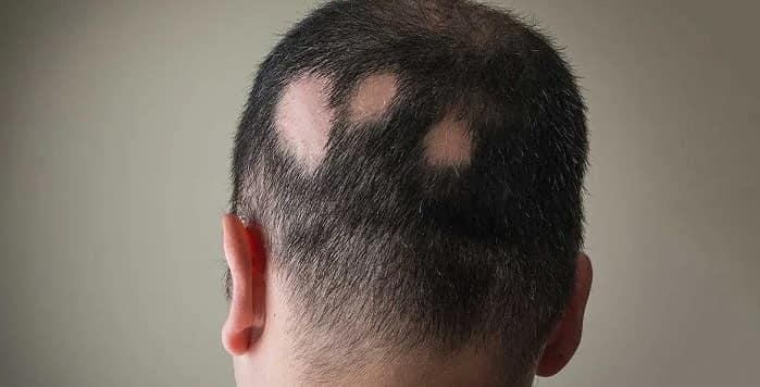 آیا ریزش موی سکه ای (آلوپسی آره اتا) درمان قطعی دارد؟