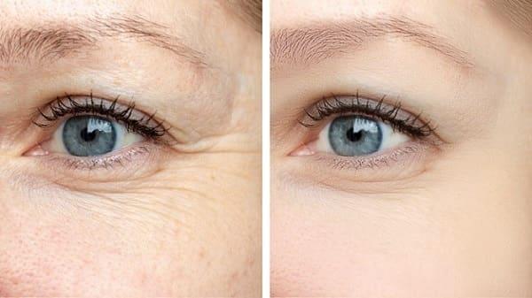 درمان خطوط پنجه کلاغی با لیزر درمانی و پیلینگ شیمیایی