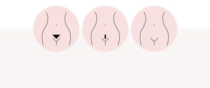 انواع روش های لیزر ناحیه تناسلی