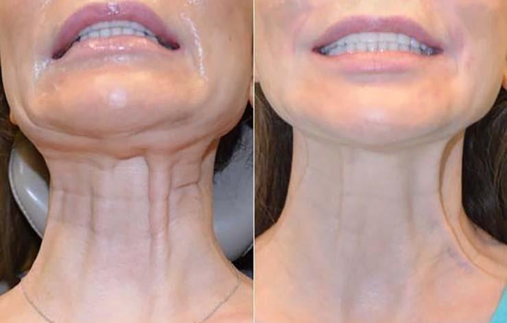 باند گردن - نوارهای پلاتیسما