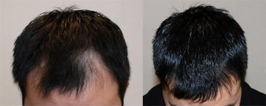 با استفاده مزوتراپی برای ریزش مو چه نتیجه ای معمولاً حاصل میشود؟