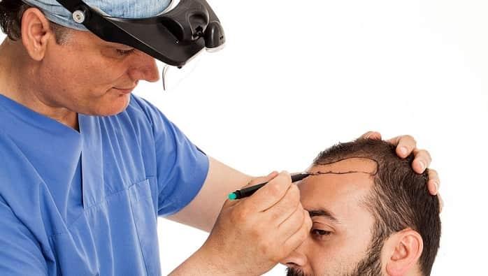 باید پزشک کاشت موی خود را بشناسید