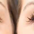 برداشتن پف زیر چشم با جراحی هزینه و چگونگی جراحی پف زیر چشم