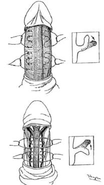 جراحی رفع کجی و خمیدگی آلت چگونه انجام میشود؟