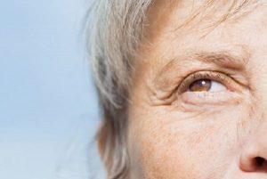 درمان خطوط پنجه کلاغی با بوتاکس، لیزر و میکرونیدلینگ دور چشم