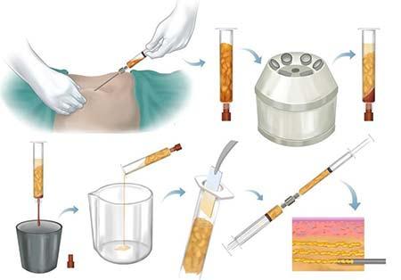 در طول درمان زیبایی گونهگذاری با تزریق چربی چه اتفاقی میافتد؟