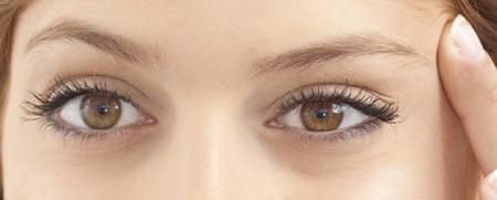 دوران بهبودی و نقاهت پس از جراحی پلک چشم چگونه است؟