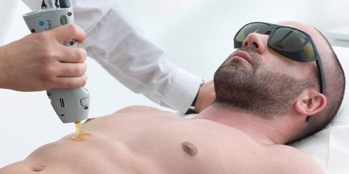 راههای پیشگیری از عوارض لیزر موهای زائد