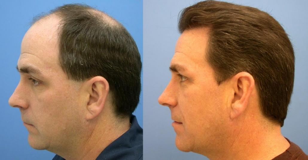 رشد موهای کاشته شده چقدر طول میکشد