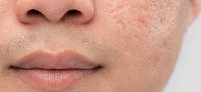 سابسیژن پوست چیست؟ سابسیژن برای درمان جای جوش و اسکارآکنه