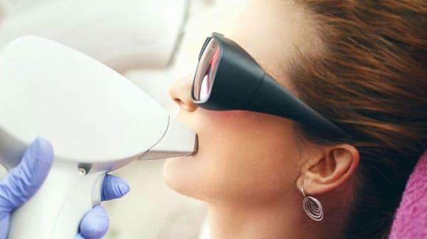 لیزر اس اچ آر(SHR) برای رفع موهای زائد صورت و بدن زنان و مردان