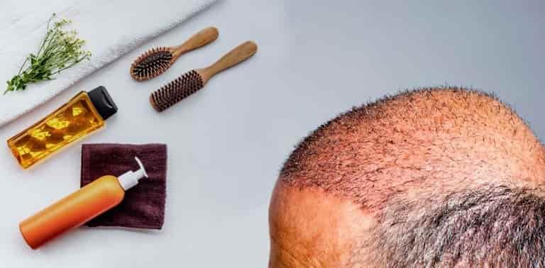 مراقبت بعد از عمل پیوند مو