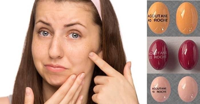 مشکلات پوستی از عوارض جانبی جدی راکوتان