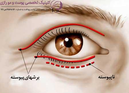نحوه انجام جراحی پلک چشم