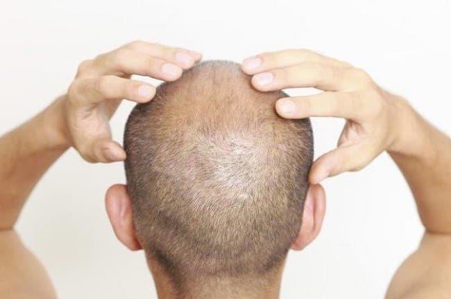 چگونه می_توان بعد از کاشت مو از شر پوسته_های سر خلاص شد؟-min