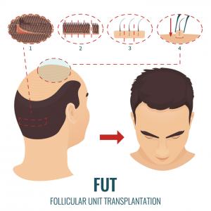 کاشت مو به روش fut (اف یو تی): مراحل، مراقبت، هزینه و عوارض
