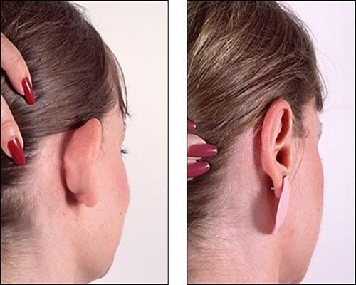 عمل زیبایی گوش+هزینه